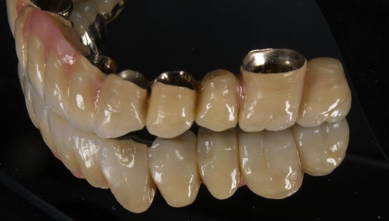 Teleskope riegel geschiebe schrauben: dengel dental